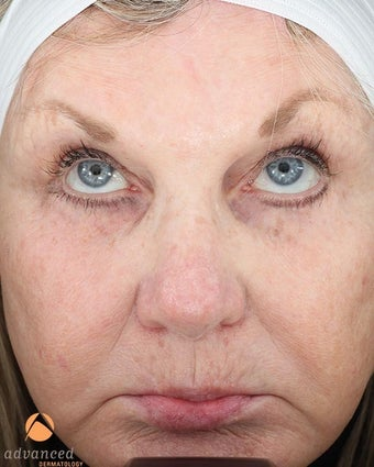 Female treated with 3 Photodynamic Therapy with Levulan for Pre-Skin Cancer (AK's) after 1041650