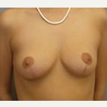 35-44 year old woman treated with Breast Reduction after 3280734