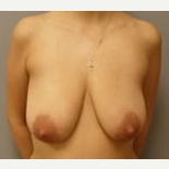 35-44 year old woman treated with Breast Reduction before 3280734