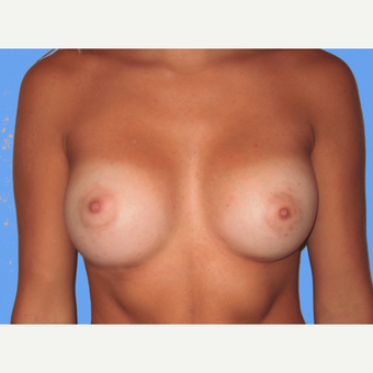 Breast Augmentation after 3731582