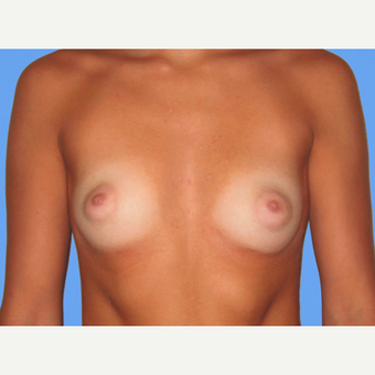 Breast Augmentation before 3731582