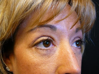 41 year old female 6 weeks after lower blepharoplasty (eyelid surgery) 1431460