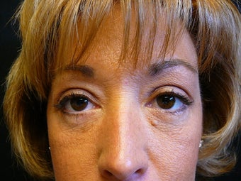 41 year old female 6 weeks after lower blepharoplasty (eyelid surgery) after 1431460