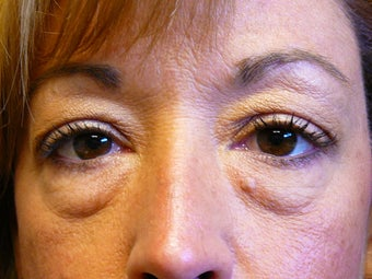 41 year old female 6 weeks after lower blepharoplasty (eyelid surgery) before 1431460