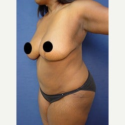 45-54 year old woman treated with Tummy Tuck after 2067298