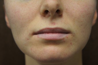 Juvederm - Injectable