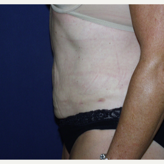 35-44 year old woman treated with Liposuction after 3147002