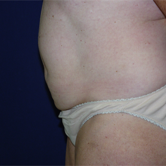35-44 year old woman treated with Liposuction before 3147002