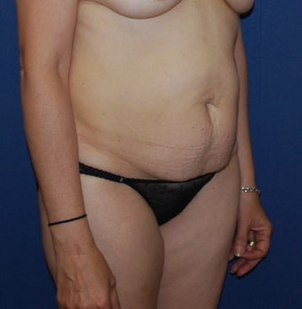 45-54 year old woman treated with Tummy Tuck before 3294095