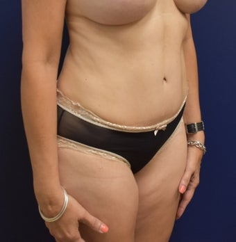 45-54 year old woman treated with Tummy Tuck after 3294095