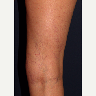 35-44 year old woman treated with Sclerotherapy before 3110222