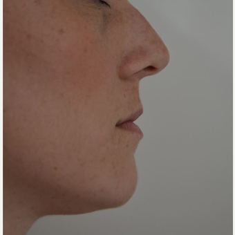 25-34 year old woman treated with Lip Augmentation before 3816551