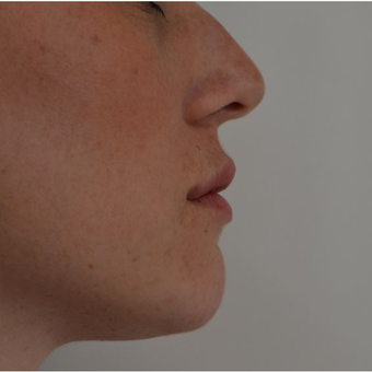 25-34 year old woman treated with Lip Augmentation after 3816551