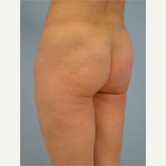 43 year old woman treated with Brazilian Butt Lift before 3432362