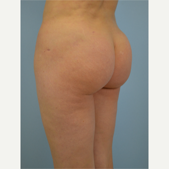 43 year old woman treated with Brazilian Butt Lift after 3432362