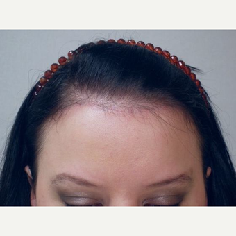 Forehead Reduction after 3241235