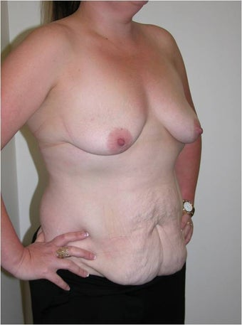 Mummy Makeover - abdominoplasty and breast augmentation before 996494