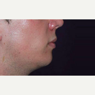 Chin Implant after 3148636