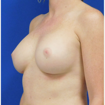 35-44 year old woman treated with Breast Implant Revision after 3820331