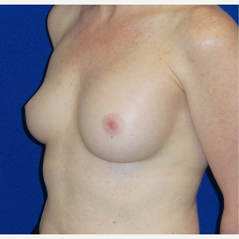 35-44 year old woman treated with Breast Implant Revision before 3820331