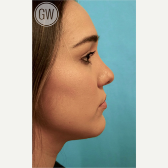 18-24 year old woman treated with Revision Rhinoplasty - Cleft rhinoplasty with fat grafting to lip after 3473500