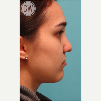 18-24 year old woman treated with Revision Rhinoplasty - Cleft rhinoplasty with fat grafting to lip before 3473500