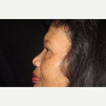 55-64 year old woman treated with Eyelid Surgery before 3320541