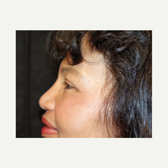 55-64 year old woman treated with Eyelid Surgery after 3320541