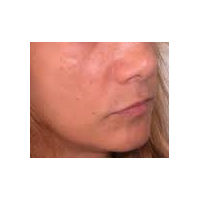 45-54 year old woman treated with Lip Augmentation before 2986811