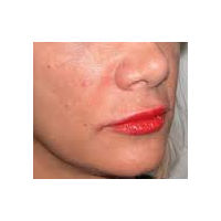 45-54 year old woman treated with Lip Augmentation after 2986811