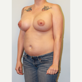 25-34 year old woman treated with Breast Augmentation after 3027023