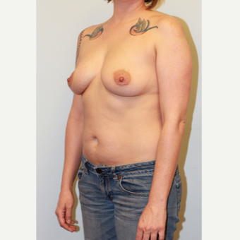25-34 year old woman treated with Breast Augmentation before 3027023