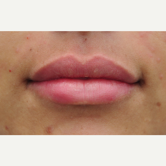 25-34 year old woman treated with Lip Augmentation after 3136027