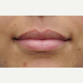 25-34 year old woman treated with Lip Augmentation before 3136027