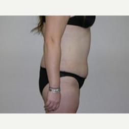25-34 year old woman treated with Liposuction 1893077
