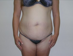 25-34 year old woman treated with Liposuction before 1893077