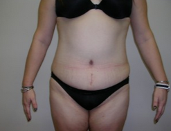 25-34 year old woman treated with Liposuction after 1893077