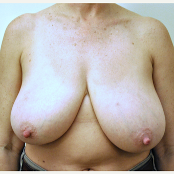 52 year old woman treated with a Breast Reduction before 3776351