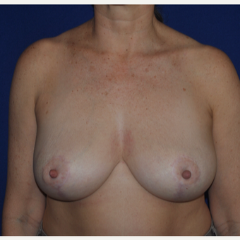 52 year old woman treated with a Breast Reduction after 3776351