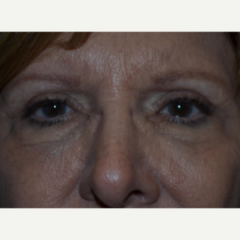 65-74 year old woman treated with Eyelid Surgery after 3339054