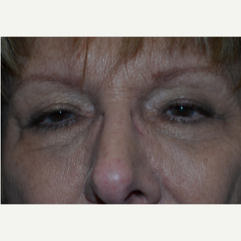 65-74 year old woman treated with Eyelid Surgery before 3339054