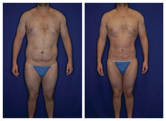 31 yo Caucasian student (previous military) who has Micro Lipo and Vaser Lipo done about his abdomen and love handles.