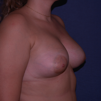 25-34 year old woman treated with Breast Implants after 3658994