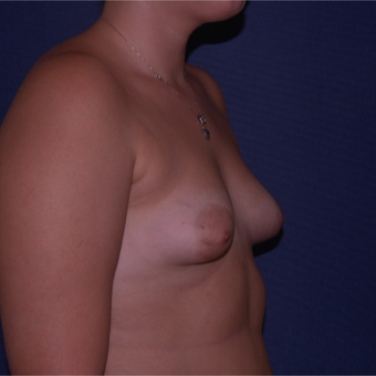 25-34 year old woman treated with Breast Implants before 3658994
