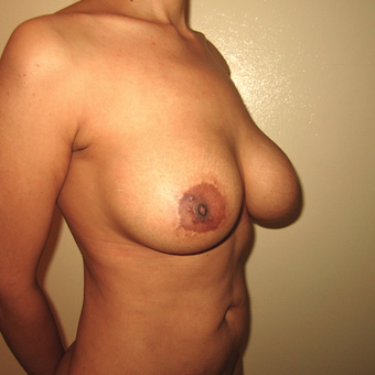 25-34 year old woman treated with Breast Lift with Implants before 3466501