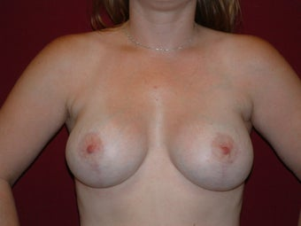 Lift with Augmentation after 722734