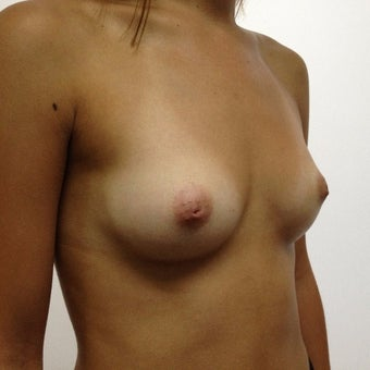 25-34 year old woman treated with Breast Augmentation before 1965503