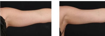 CoolSculpting non-invasively eliminates excess fat on the arms.  before 1088397