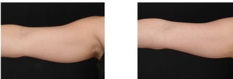 CoolSculpting non-invasively eliminates excess fat on the arms.  after 1088397