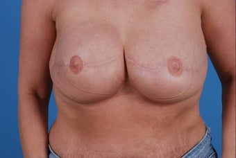 47 year old female treated for breast cancer post mastectomy after 1355462